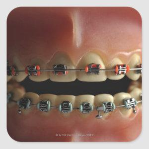 A dental model and Teeth braces Square Sticker